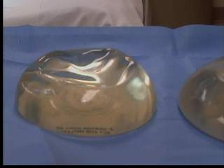 New breast implant by Akron researcher