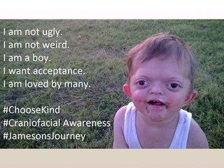 jameson_1454951060599_31544539_ver1.0_320_240 mom defends son with pfeiffer syndrome against offensive internet,Syndrome Meme