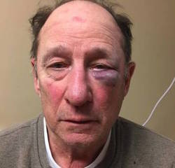 School bus driver assaulted by parent