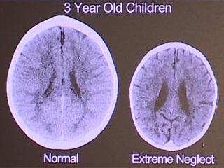 Opioid crisis bad for child brain development
