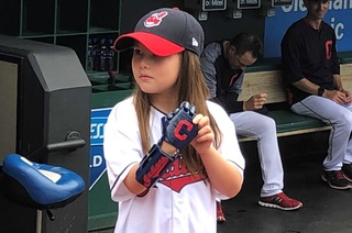 Girl with bionic hand throws out first pitch